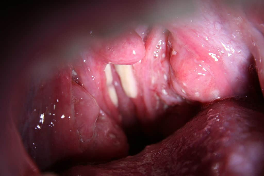 man-with-tonsillitis
