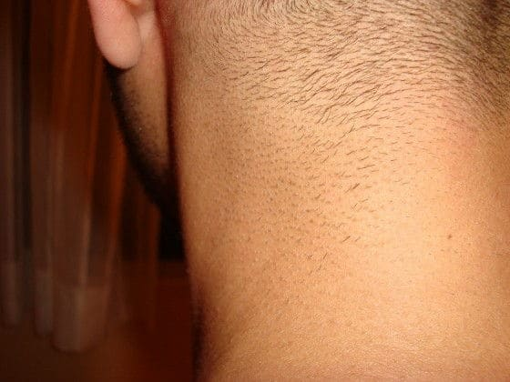 IPL Results on Neck Hair after 2 treatments