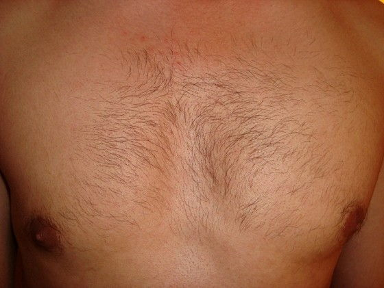 VISS IPL treatment on mens hairy chest
