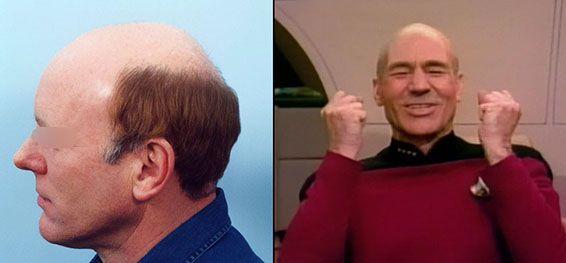 horseshoe-hair-men